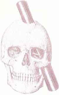 Пробитый ломом череп Гейджа